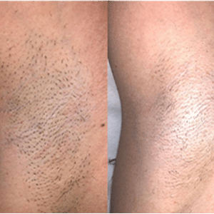 Laser Hair Removal Results-1
